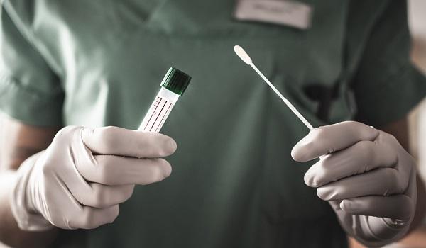 Qual é O Teste Ideal Para O Diagnóstico Do Vírus SARS-Cov-2?